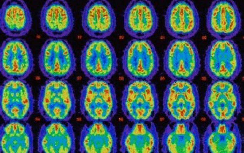 Neurogenesis and Brain Growth